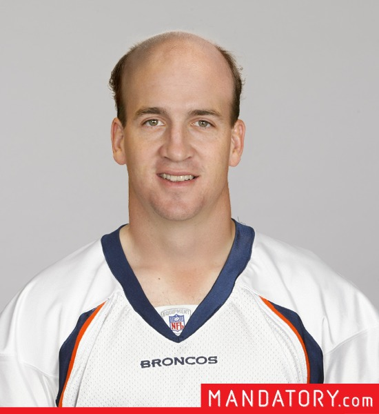 bald-quarterbacks-04-1
