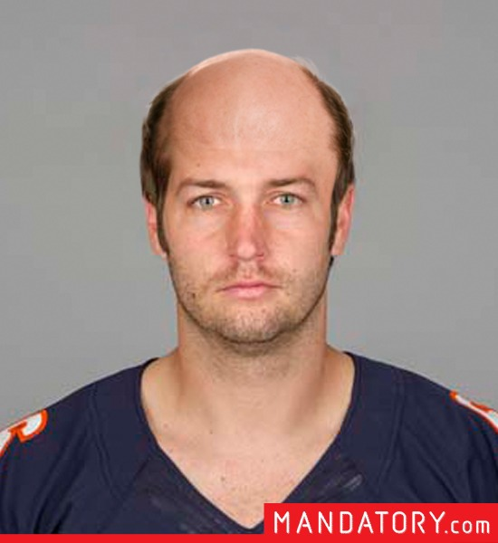bald-quarterbacks-09-1