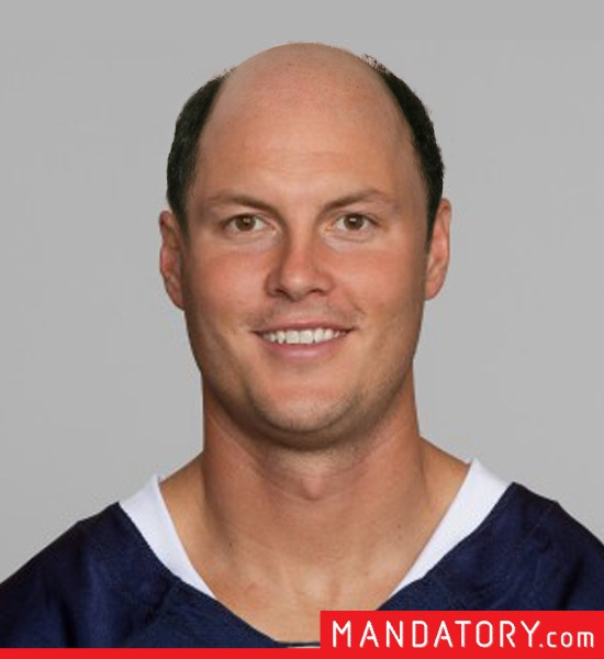 bald-quarterbacks-10-1